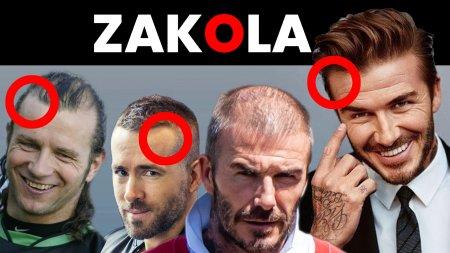 Zakola – fryzury męskie i sposoby na zakola. STOP na wypadanie włosów!